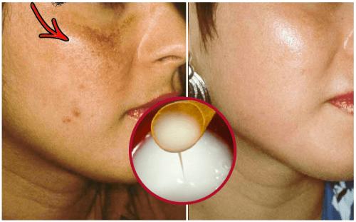 त्वचा को गोरा बनाने के लिए इस प्राकृतिक घरेलू क्रीम का उपयोग करें