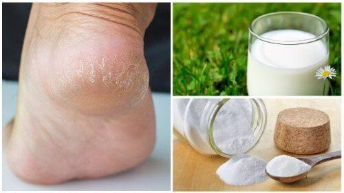 नरम और मुलायम पाँव पायें, आज़माएँ ये दो प्राकृतिक चीजें