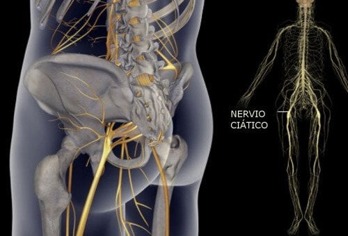 साईएटिक नर्व के दर्द को ठीक करने की आसान एक्सरसाइज