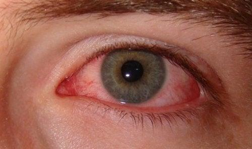 आँख का दर्द
