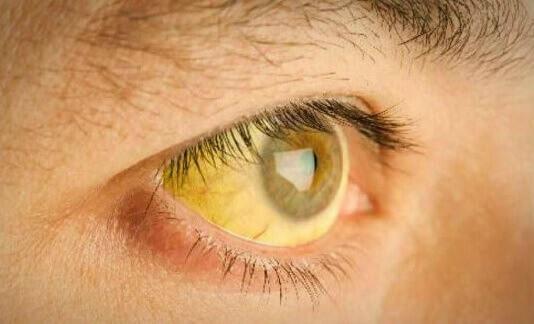 लीवर में टॉक्सिन: पीली त्वचा
