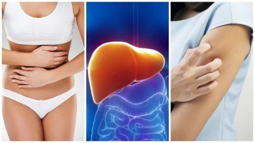 8 लक्षण जो लीवर में टॉक्सिन जमा होने पर आपको परेशान करते हैं