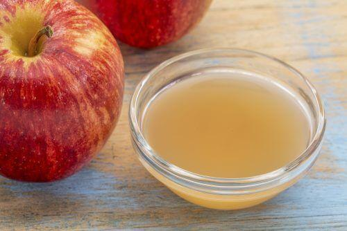 सेब का सिरका दिलाये केलोइड निशान से मुक्ति