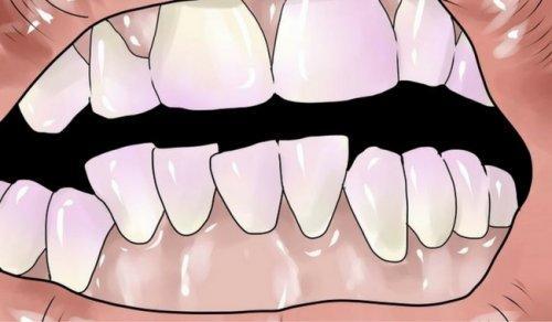 दाँतों केटार्टर से छुटकारा पाने के प्राकृतिक तरीके