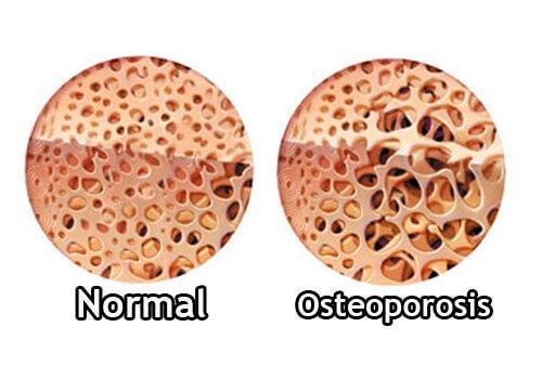 क्रोन्स रोग: ग्लुकोकौर्टीकोइड्स