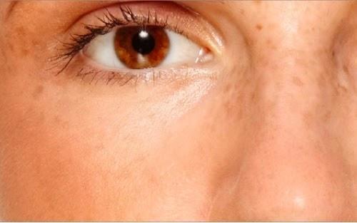पॉलीसिस्टिक ओवेरियन सिंड्रोम: चित्तियाँ पड़ना