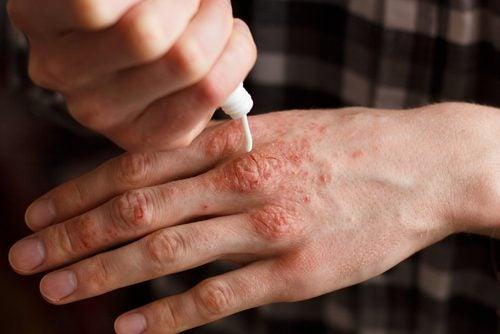 6 नेचुरल क्रीम: इनसे करें सोरायसिस का इलाज