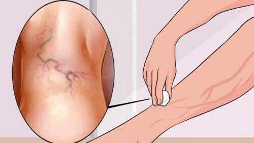 8 बेजोड़ एक्सरसाइज जो वेरीकोस वेंस का इलाज करती हैं