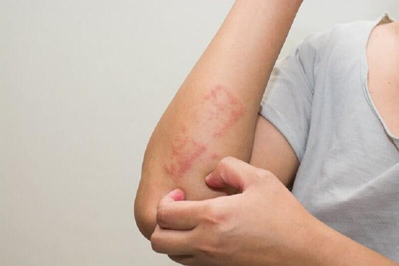ल्यूकेमिया: त्वचा पर बैंगनी या लाल चकत्ते