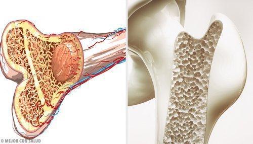 40 की उम्र से ऊपर: हड्डियों, मांसपेशियों