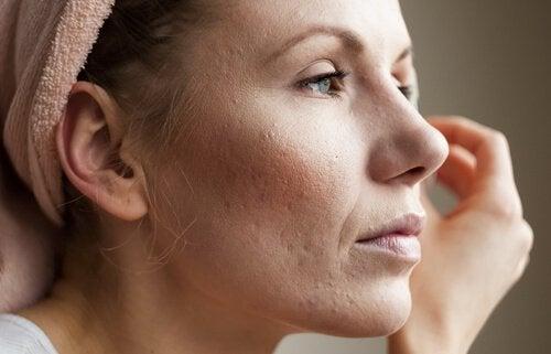 हाई कोर्टिसोल लेवल: चिंता