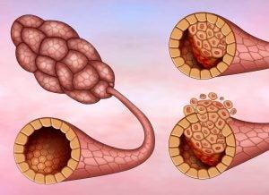 ब्रैस्ट कैंसर: डक्टल कार्सिनोमा