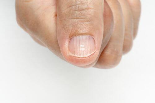उंगलियों के नाखूनों की रेखाओं से कैसे छुटकारा पायें