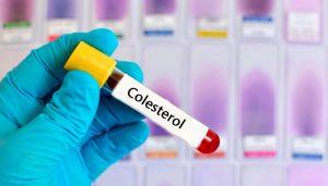 रोज़ शहद खाने के फायदे: कोलेस्ट्रॉल