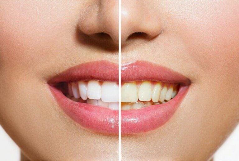 प्राकृतिक उत्पाद जो रखते हैं आपके दांतों को सफ़ेद और चमकदार