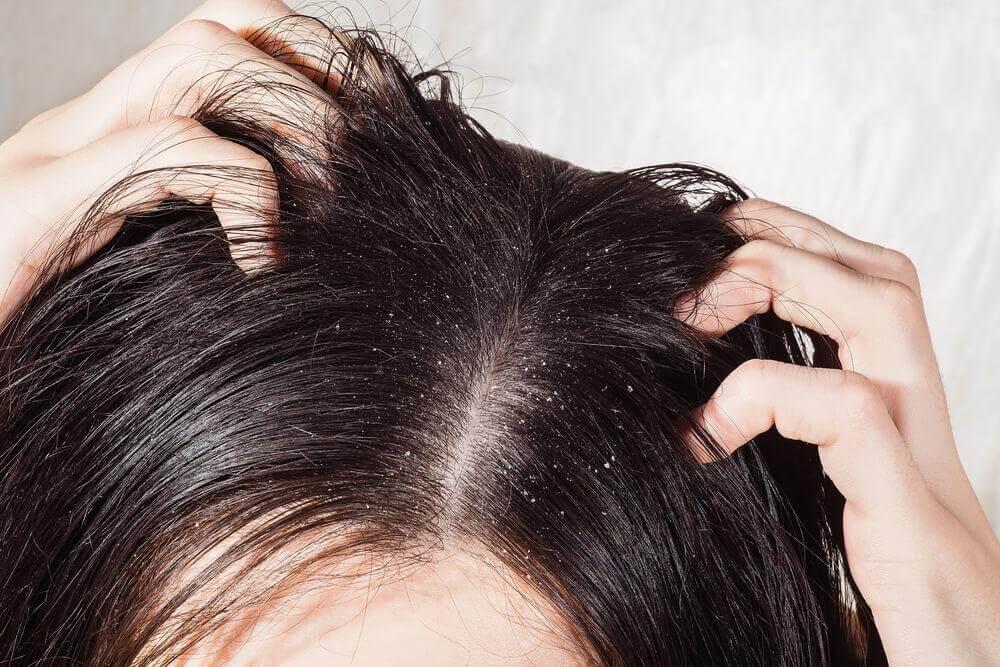 6 सर्वश्रेष्ठ उपाय सिर के फंगस को ख़त्म करने के लिए