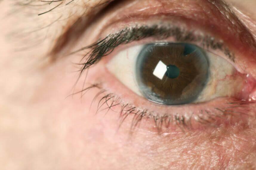मोतियाबिंद यानि ग्लूकोमा क्या है