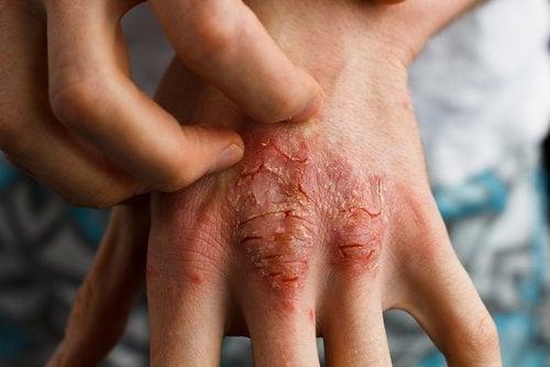 सार्सपरील (Sarsaparrilla) से करें सोरायसिस का इलाज