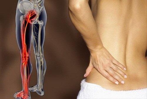 6 आसान एक्सरसाइज साइटिका के दर्द से निजात पाने के लिए