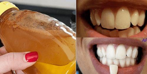 एप्पल साइडर विनेगर: इस सौ प्रतिशत प्राकृतिक सामग्री से अपने दांत चमकायें