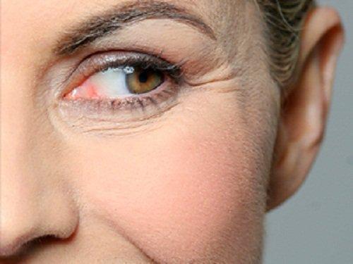 एप्पल साइडर विनेगर से आप अपने चेहरे की झुर्रियों से छुटकारा पा सकते हैं
