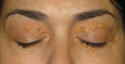 जैंथिलास्मा: आंखों के आस-पास सफेद धब्बे