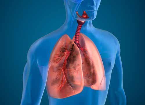 10 नेचुरल चीजें जो धूम्रपान का खतरनाक असर घटाएंगी