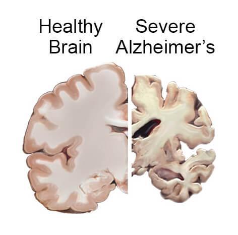 अल्ज़ाइमर से पीड़ित दिमाग