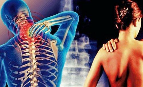सर्विकोब्रैकियल सिंड्रोम: दर्द आपकी गर्दन से होकर बाजुओं तक जाता है