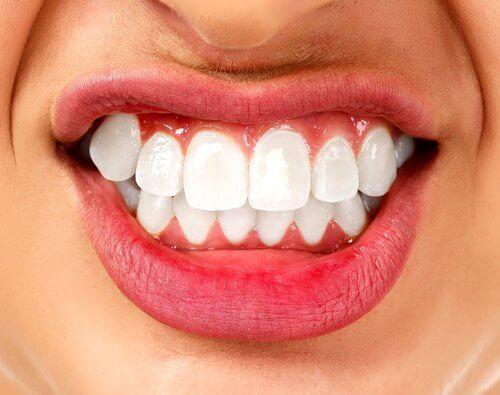 ब्रक्सिज्म: दांत पीसने की एक मनोदैहिक बीमारी