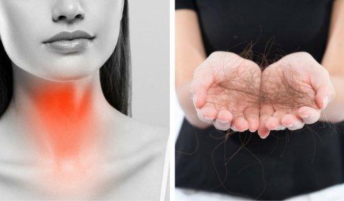 8 चीजें जो आप थायरॉइड की वजह से बालों का झड़ना रोकने के लिए कर सकते हैं