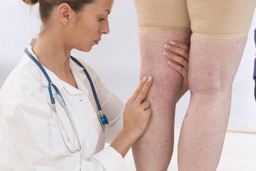 हाइड्रेशन और एडीमा (Hydration and edema)