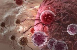 ट्यूमर्स में ऐवोकैडो सीड्स के फायदे