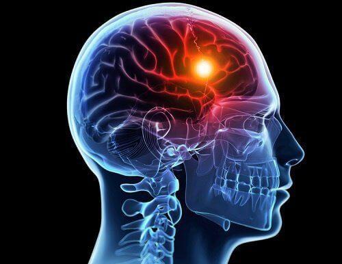 8 चेतावनी सूचक लक्षण जो ब्रेन स्ट्रोक से पहले आपका शरीर देता है