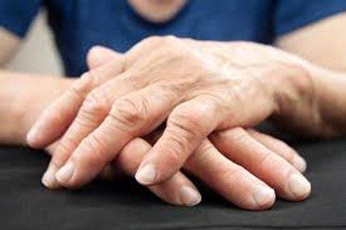 आर्थराइटिस का इलाज करने का नया तरीका