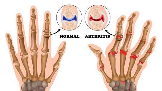 कार्टिलेज की मदद से आर्थराइटिस का इलाज