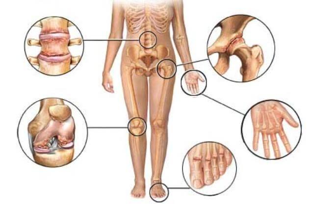 आर्थराइटिस की नयी इलाज पद्धति