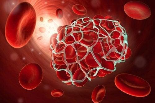 थ्रोम्बोसिस और स्ट्रोक को रोकने में मददगार 9 तरह के खाद्य-पदार्थ