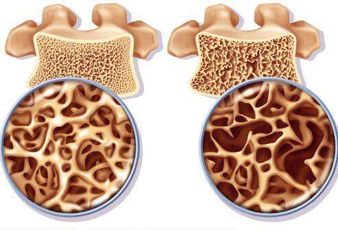 ऑस्टियोपोरोसिस की रोकथाम के लिए कैल्शियम से भरपूर नुस्खा
