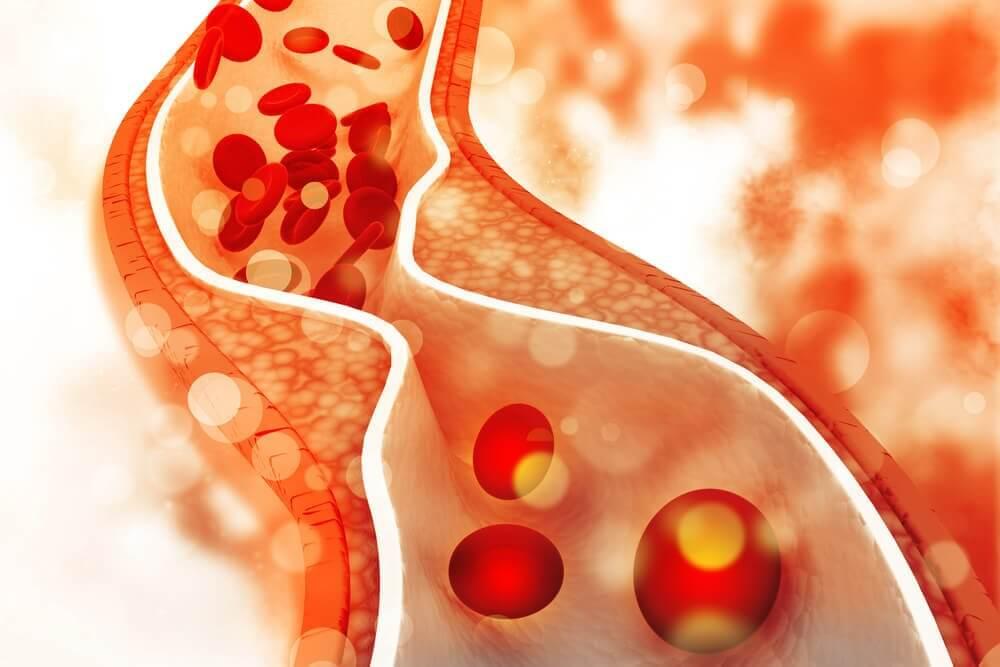 कोलेस्ट्रॉल और ब्लड शुगर के लक्षण