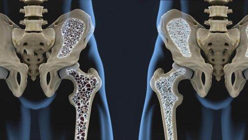 ऑस्टियोपोरोसिस को रोकने में मददगार 6 डाइट टिप्स