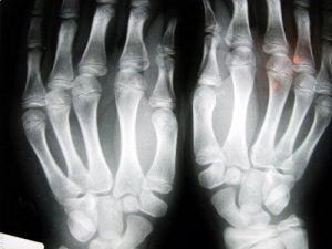 ऑस्टियोपोरोसिस की रोकथाम