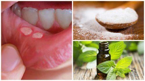 7 प्राकृतिक नुस्खे: मुंह के छालों के उपचार के लिये