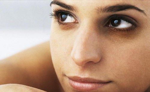 आंखों के नीचे बने डार्क सर्कल्स का इलाज
