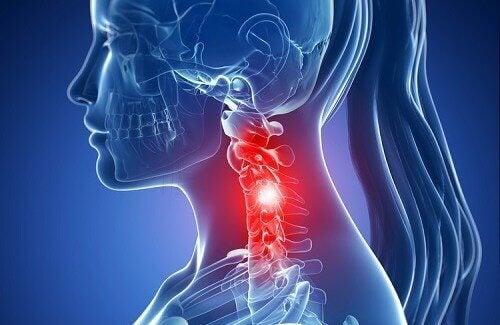 सर्वाइकल स्पोंडिलॉसिस के लक्षण और इसका नेचुरल ट्रीटमेंट