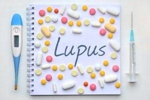 ल्यूपस रोग को पहचानना संभव है