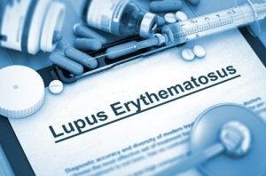ल्यूपस रोग के प्रकार