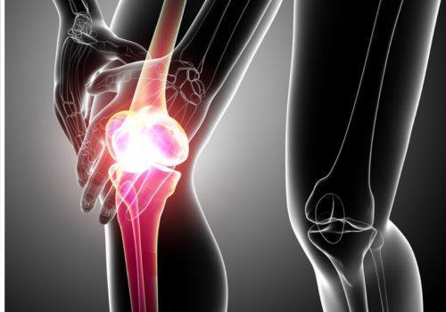 टेंडनाइटिस की वजह से होने वाला कूल्हों का दर्द
