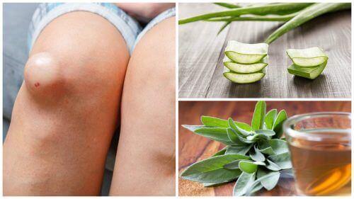 घुटनों की सूजन कम करने के 5 बेहतरीन नुस्खे