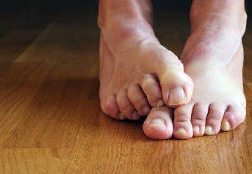 पैरों की उँगलियों में लगी फंगस के बारे में 7 तथ्य